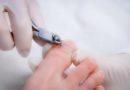 Batık tırnak tedavisinde kesin çözüm