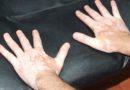 Vitiligo hastalığı için yeni bir kür