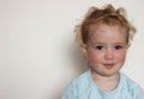 Çocuklarda görülen cilt problemleri ve tedavi yolları