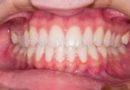 Dişeti çekilmesinin nedenleri ve tedavi şekilleri ?