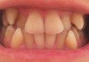 Çarpık dişlere kolay çözüm