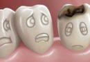 Diş çürüğü kansere neden olabilir!