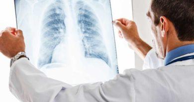 Grip Sandığınız Belirtiler Bu Kansere İşaret Edebilir