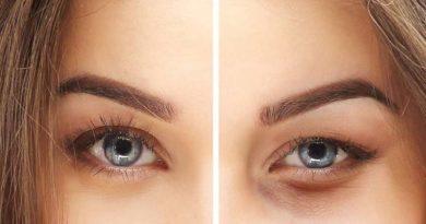 Göz kapağı cerrahisi gerektiren 4 neden